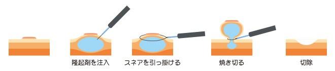 内視鏡的粘膜切除術(EMR)